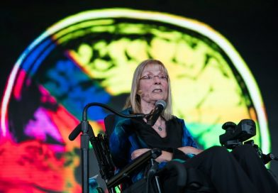 Elizabeth Jameson: a beleza perfeita de um cérebro imperfeito